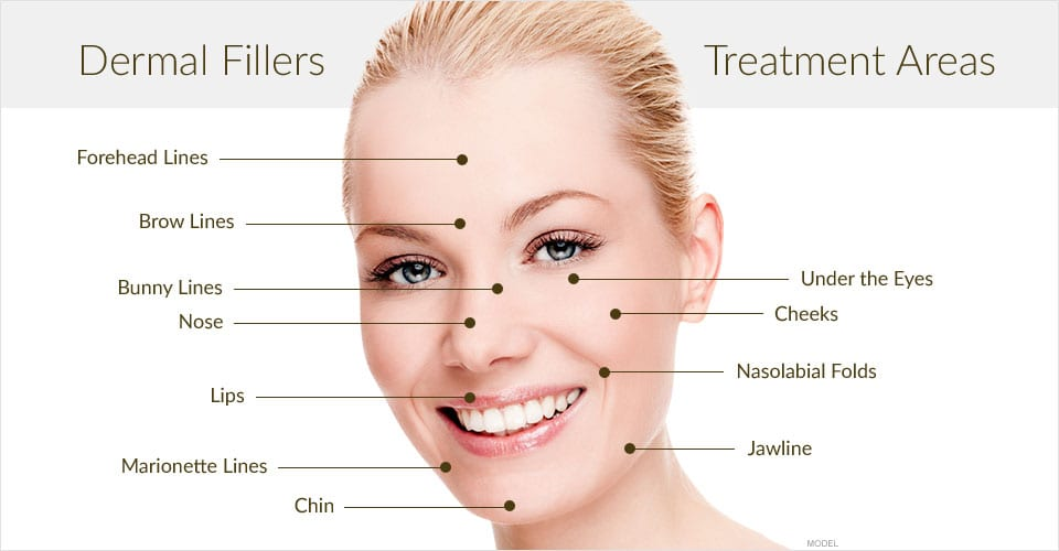 Juvederm and Restylane in San Antonio Texas
