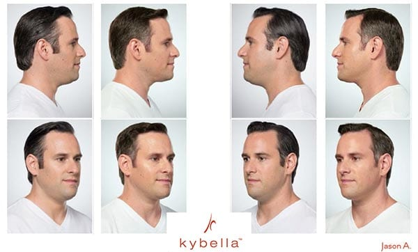 Kybella-male-men-san-antonio